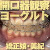 Orthodontics in Miki-Chan opening detector, eat yogurt