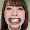 We observed the teeth [dental Fetish: Hatano YUI-CHAN! [Permanent]