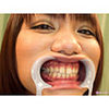 [Dental fetish] Vero 長美 people, cum covered with silver teeth tooth observation! [Kitamura, Rena]
