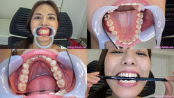 [Dental Fetish: Aya Muto はるか of observed the teeth!